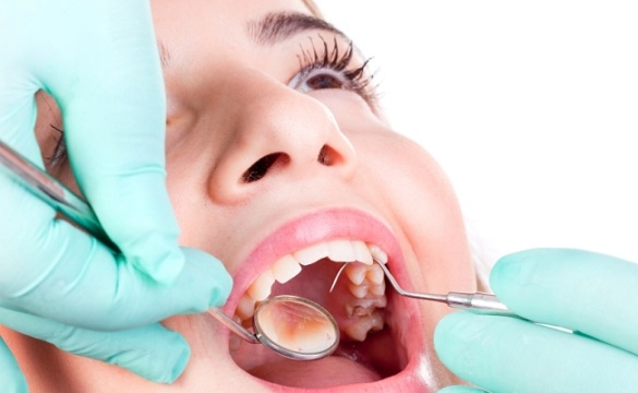 Abscessed Teeth - Symptoms Causes And Treatments #FrizeMedia