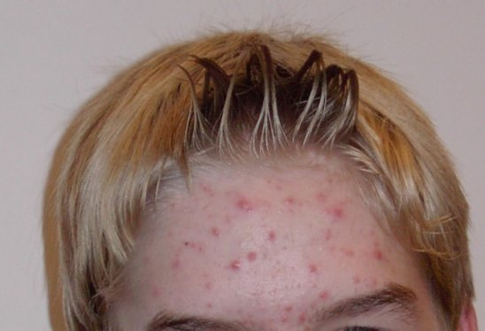 Acne is a dermatological expression that includes blocked pores, pimples, lumps or cysts
