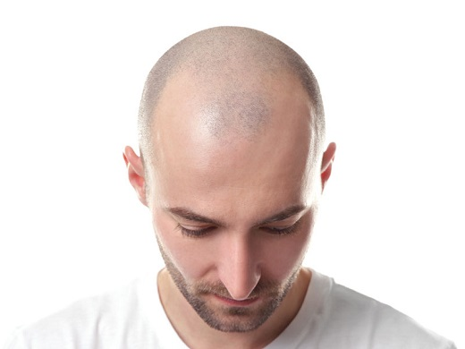 Hair Loss - Common Hair Loss Causes #FrizeMedia