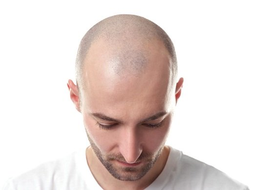 Hair Loss - Common Hair Loss Causes #FrizeMedia